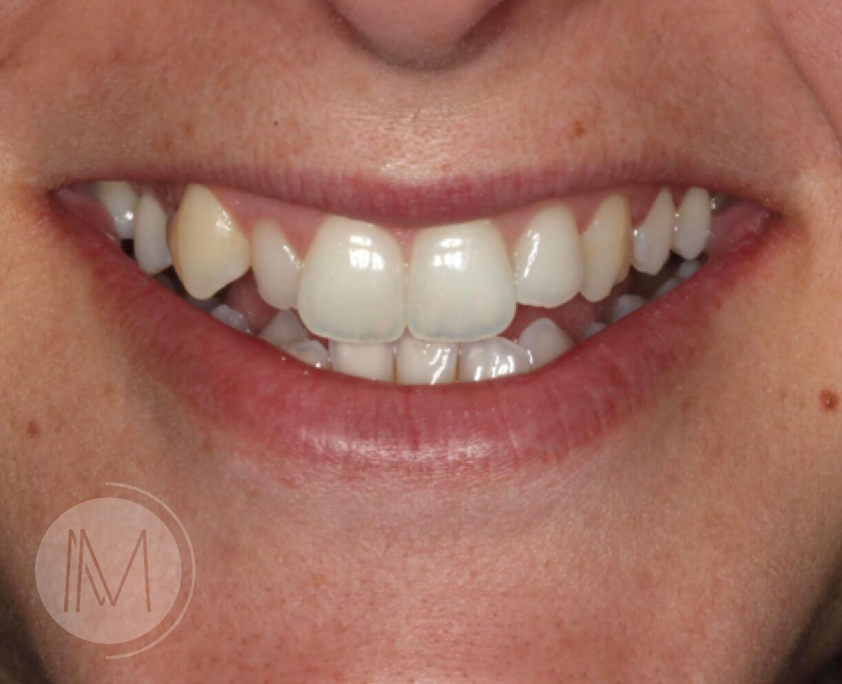 Tratamiento con Ortodoncia Invisible 7