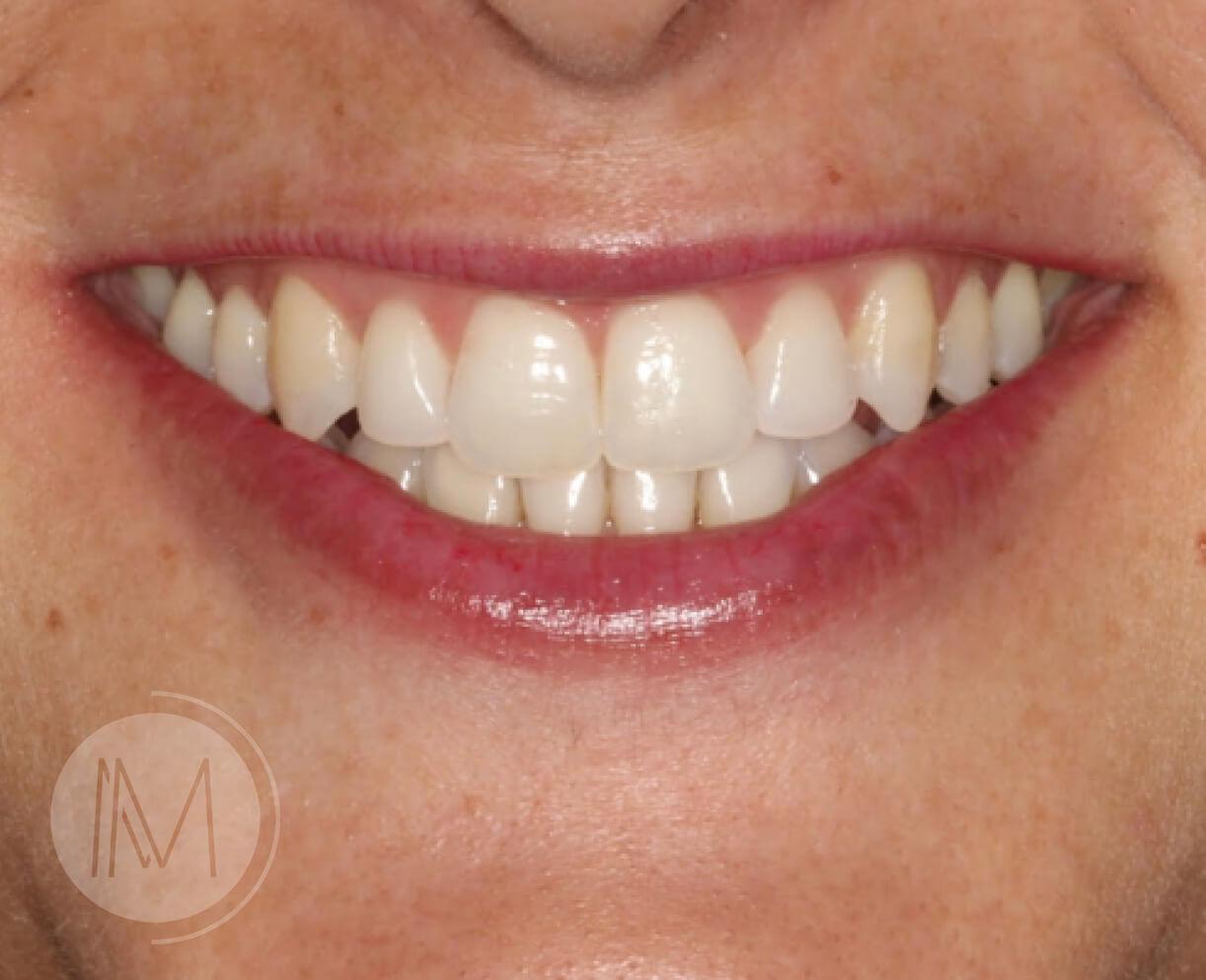 Tratamiento con Ortodoncia Invisible 9