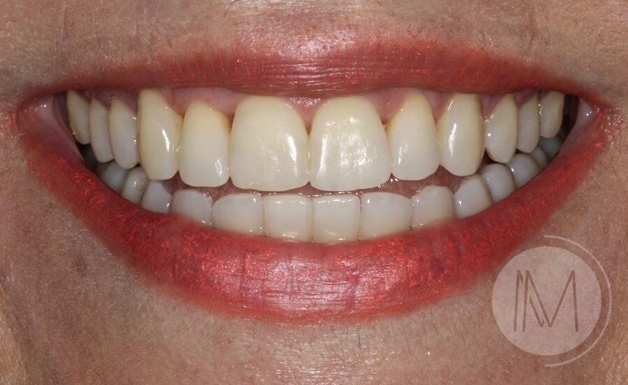 ortodoncia_1-2