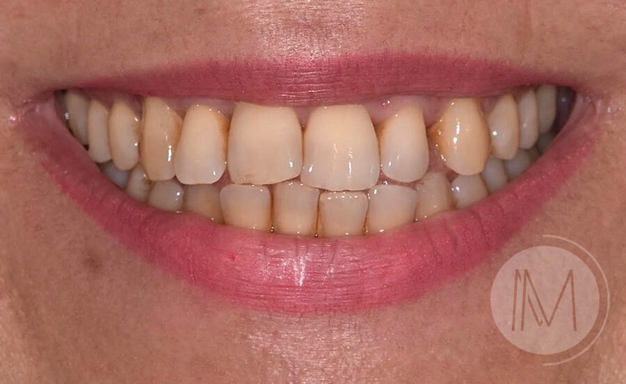 ortodoncia_1-1