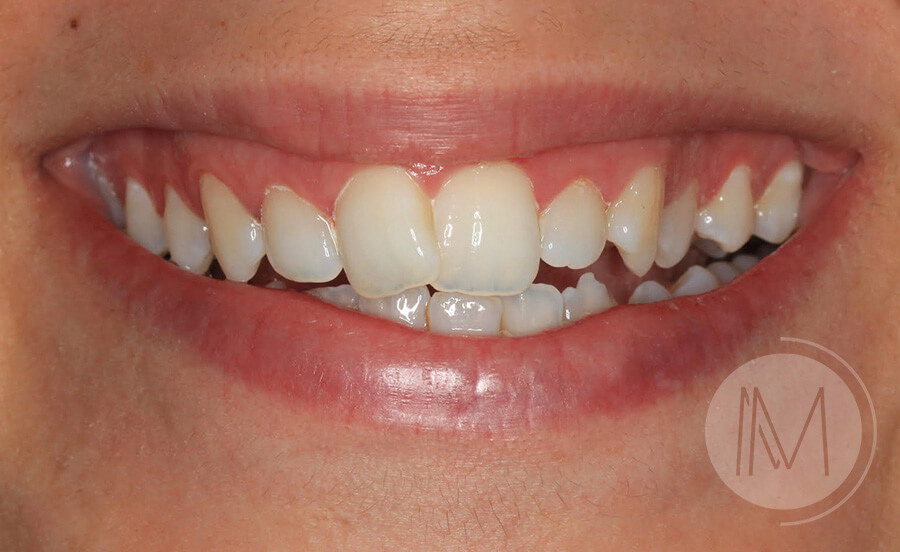 ortodoncia_2-1
